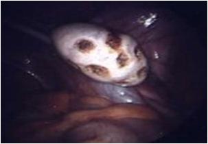 Fertility Treatment - Ovarian Drilling
