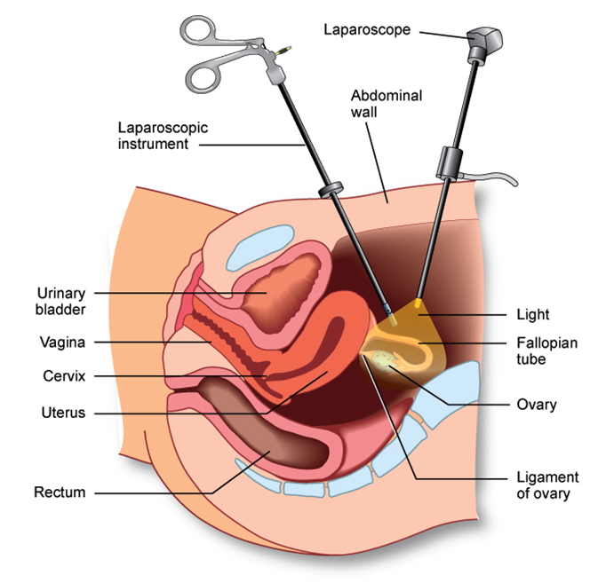 Fertility Investigations-Laparoscopy